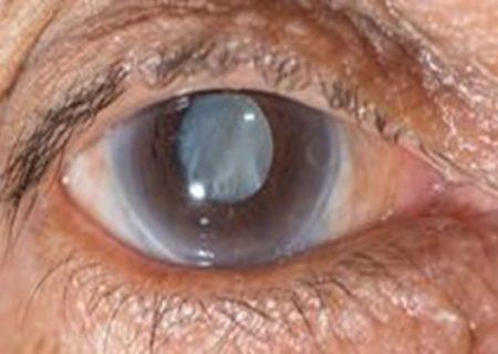 چطور خشکی «چشم» را رفع کنیم؟